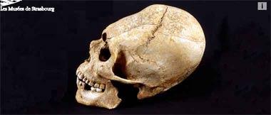 Histoire(s) de Squelettes au Musée Archéologique de Strasbourg