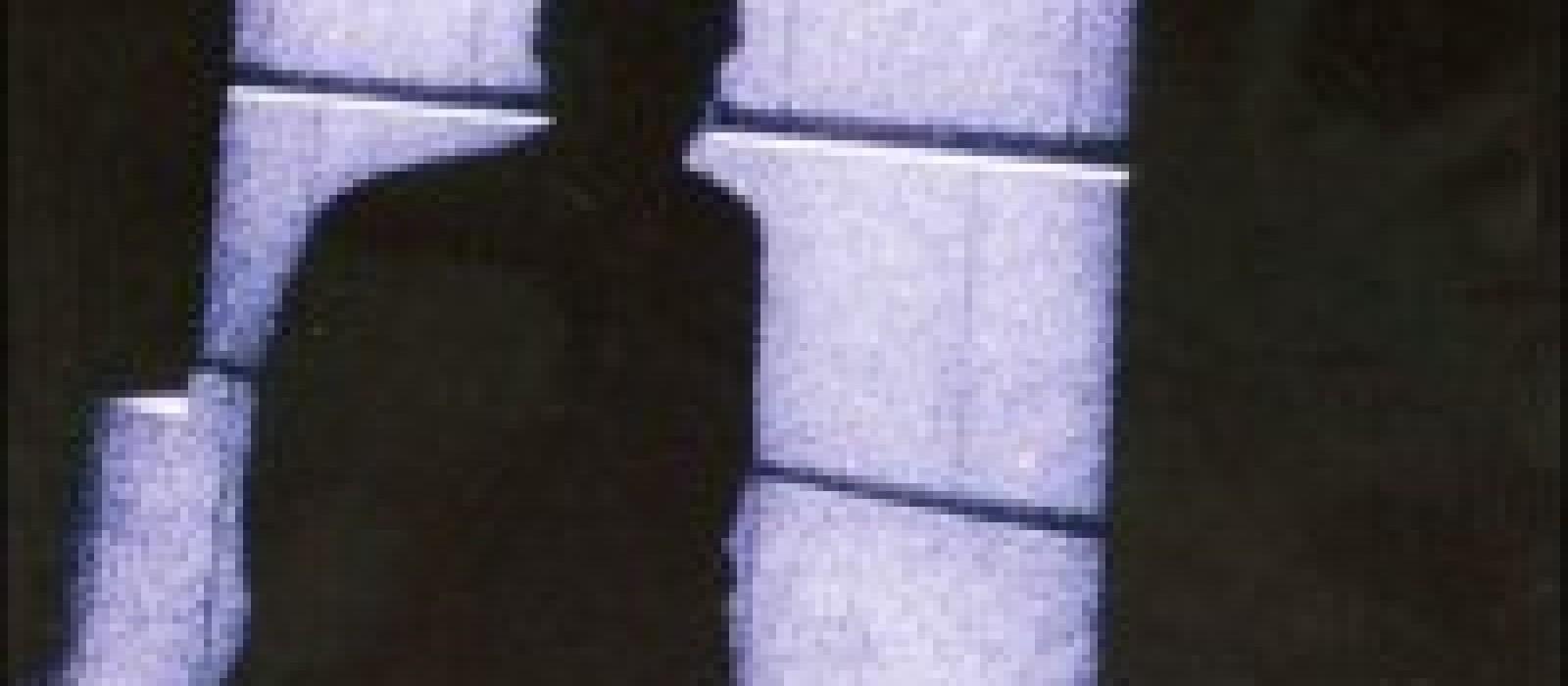 L'Adversaire (Emmanuel Carrère)